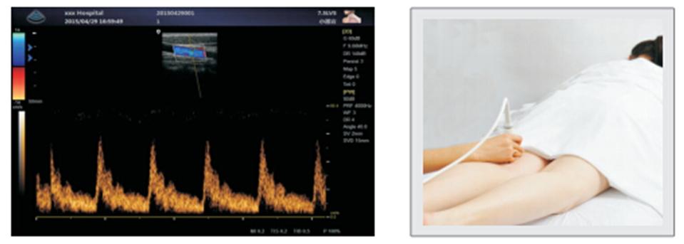 Цифровой стационарный УЗИ-сканер с цветным, энергетическим, импульсным и постоянным допплером.