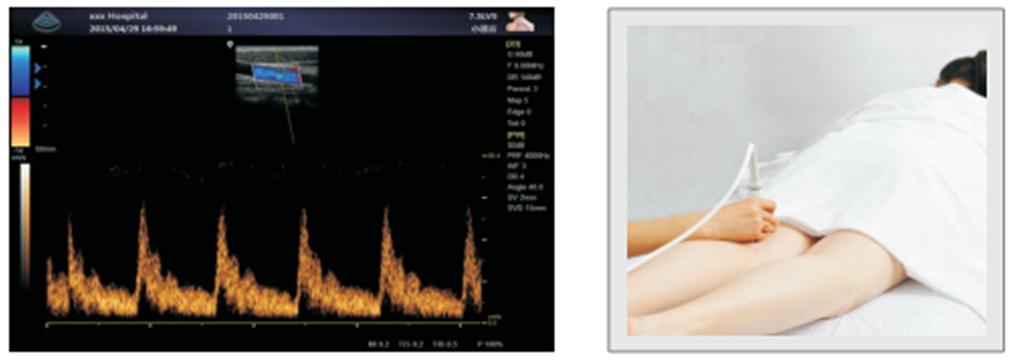 Цифровой портативный УЗИ-сканер с цветным, энергетическим, импульсным и постоянным допплером.